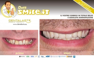 caso clinico estetica dentale
