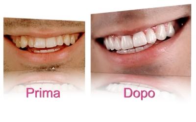 clinica-estetica-faccette-dentali