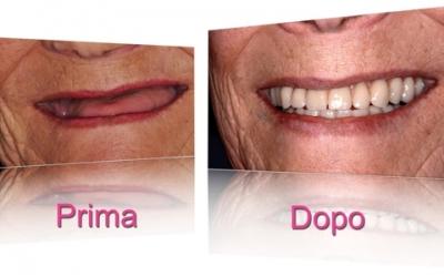 implantologia-dentale-torino-01