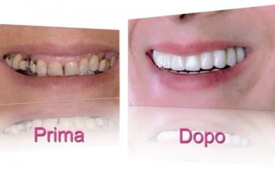 implantologia-dentale-torino-02
