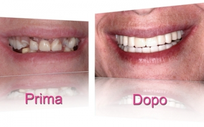 implantologia-dentale-torino-03
