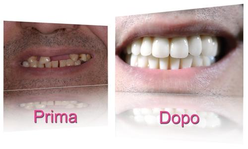 implantologia-dentale-torino-04